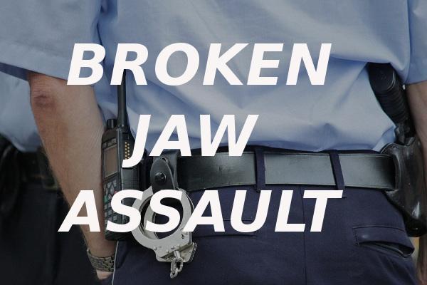 broken jaw assault